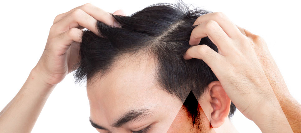 Haartransplantation Türkei Ergebnis