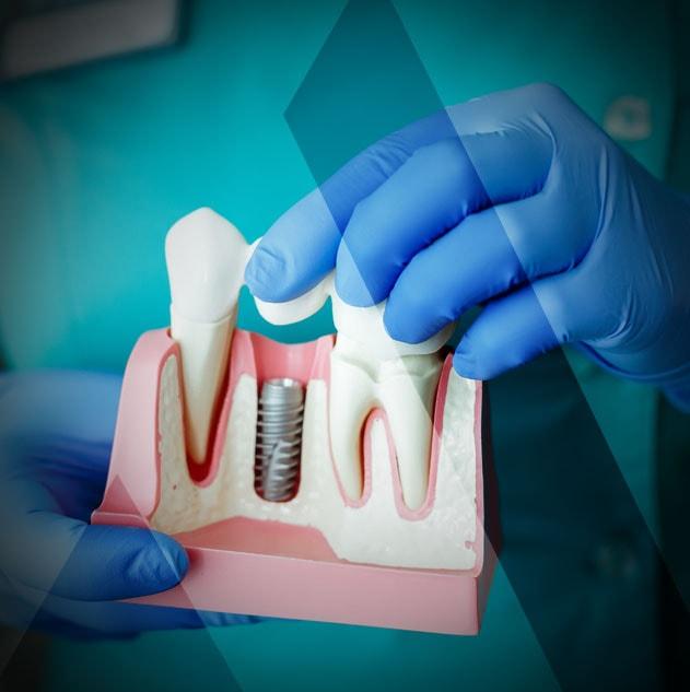 Zahnimplantat in der Türkei