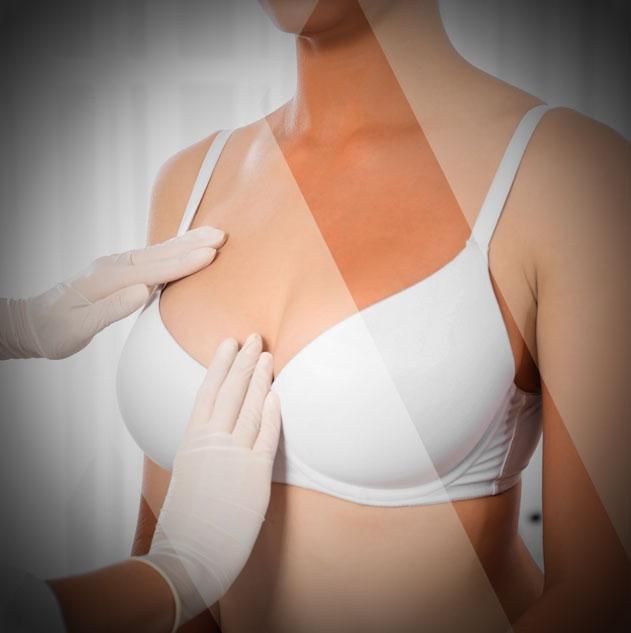 Brusthypertrophie
