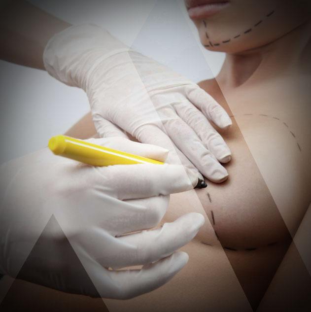 Brustverkleinerung OP Türkei