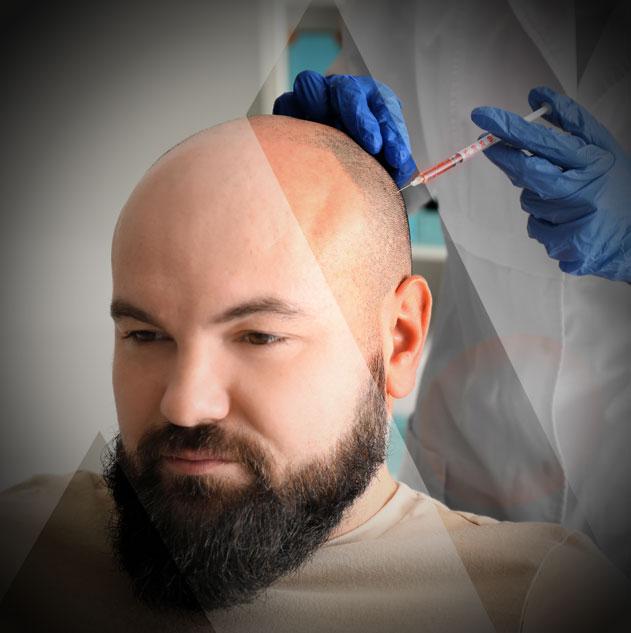 Haare Transplantation Türkei